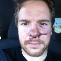 Here's What A Skate To The Face Looks Like